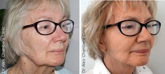 best hairstyles for sagging jowls mini facelift thread lift procedure london uk