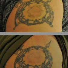 tattoo removal st paul mn best tattoo 2017