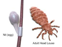 human head lice what you need to know massey services inc