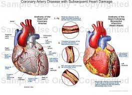 Heart Anatomy Arteries Coronary Artery Disease With Subsequent Heart Damage Medical