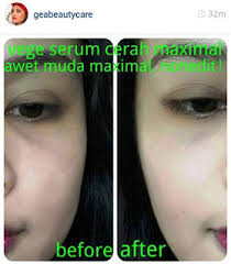 Serum Vege gea serum vege herbal anti aging pencerah pemutih kuli