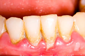 Best Way To Whiten Teeth At Home Gingivitis U0026 Periodontitis Symptoms U0026 Treatment Of Gum Disease