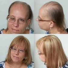 wigs for women with thinning hair medical hair loss