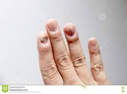 toenail fungus at peak infection stock photo image 14111570