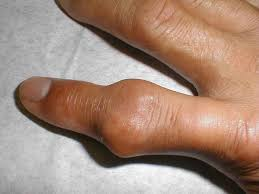 best 25 how to cure gout ideas on pinterest gout cure gout