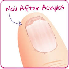 the right treatment products for your nail type truly scrumptious