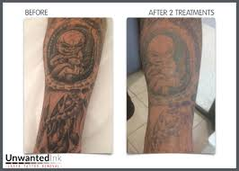 download tattoo sleeve laser removal danielhuscroft com