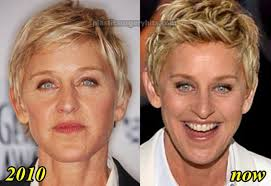 hairstyles that cover face lift scars ellen degeneres plastic surgery before and after facelift and necklift