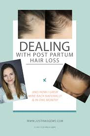 best 25 hair loss after pregnancy ideas on pinterest biotin