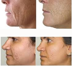 light therapy for skin bareskin beauty red light therapy