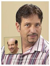 before and after thinning mens haircut mens before santangelo hair replacement