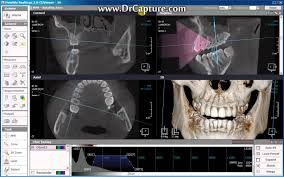 3d Medical Software Real Scan 3d Software By Keymed Youtube