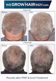 Injection In Scalp For Hair Growth Prp Treatment For Hair Loss We Grow Hair Indy