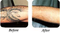lourdes hospital tattoo removal binghamton ny