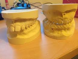 mumsnet overbite functional orthodontic appliances on ds tell me it gets easier