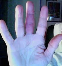 how to get rid of blood clot in finger at home best remedies best