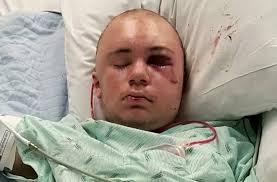 Dies From Challenge 14 Year Boy Nearly Dies Duct Challenge