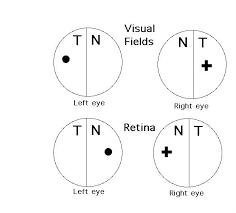Blind Spot In Left Eye 806 Eyelab