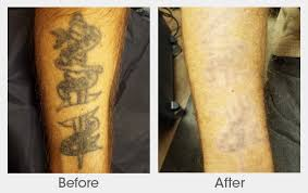 tattoo removal frequently asked questions puremd medspa laser tattoo removal