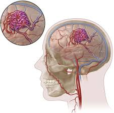 management of brain arteriovenous malformations a scientific