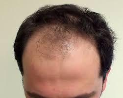 prescreened hair transplant physicians hair transplant turkey dr ekrem civas hair restoration center