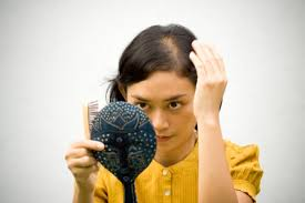 thinning hair in women on top of head female hair loss treatments in dominican republic dr alba reyes