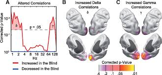 Define Cortical Blindness Altered Intrinsic Neuronal Interactions In The Visual Cortex Of