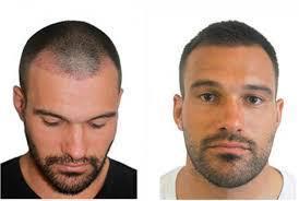hair plugs for men how does hair transplant surgery cost hair transplant clinic dubai
