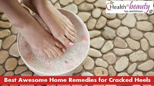 simple effective ways to get rid of cracked heels fast