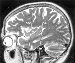 Sagittal Brain Mri Anatomy The Insula Anatomic Study And Mr Imaging Display At 1 5 T