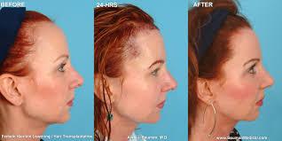 female balding at temples hairstyles female hairline lowering benefit hair pinterest hair