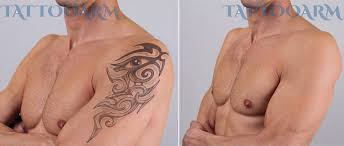 how to remove permanent tattoos without laser surgery self