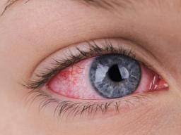 What Causes Blindness At Birth Squint Or Strabismus Causes And Treatment
