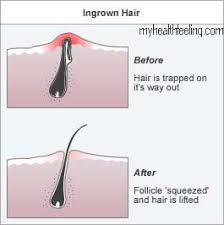 trimmed pubic hair ingrown pubic hair treatment symptoms bumps boils abscess
