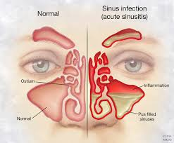 can sinus infection cause dizziness light headed mayo clinic q a chronic sinusitis symptoms resemble a cold but