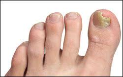 toenail fungus laser treatment carrollton texas foot doctor