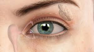 Cataract Leads To Blindness Due To Diagnosing And Treating Cataracts Seattle Ophthalmologists Eanw