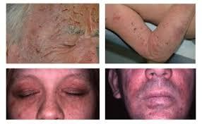dermite du siege la dermatite atopique de l adulte la fondation pour la dermatite