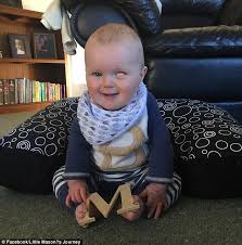 Artificial Eye For Blind Nz Baby Mason Who Lost His Eye To A Rare Disease Gets An Identical
