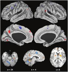 learning rewires the brain science news for students