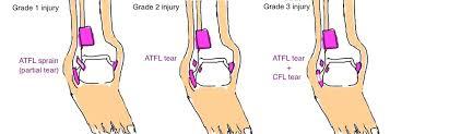 Anterior Talofibular Ligament Repair Ankle Sprain U2014 Bone Talks