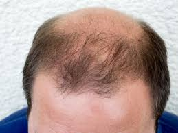 dht dihydrotestosterone what is dht u0027s role in baldness