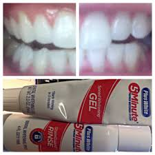 Best Way To Whiten Teeth At Home Magnificent Sample Of Uv Teeth Whitening Arresting Teeth Whitening