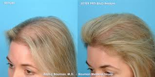 prp treatment for hair loss side effects u2013 trendy hairstyles in