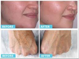 light therapy for acne scars acne scars and microdermabrasion is this a real acne scar solution