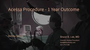 new fibroid treatment one year after acessa procedure treats 32