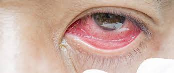 eye infection symptoms and treatment think about your
