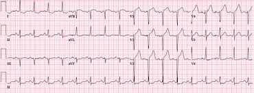 strain pattern ecg meaning dr smith s ecg blog lvh with anterior st elevation when is it