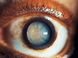 What Causes Blindness In Humans Cloudy Eye 12 Scary Things Your Eyes Say About Your Health