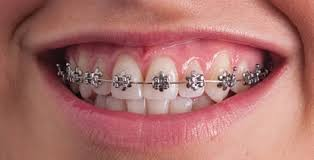nickel free braces orthodontist types of treatment braces medford moorestown nj